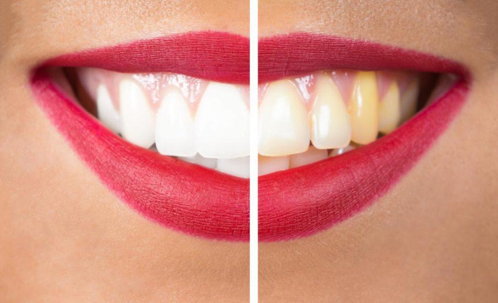 ฟันเหลือง แก้ยังไง